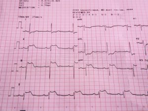 An Electrocardiogram can tell us about your cardiac rhythm and detect cardiac ischaemia