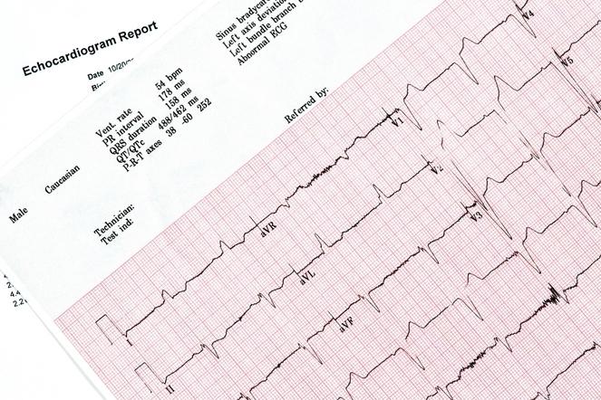 An Electrocardiogram can tell us about your cardiac rhythm