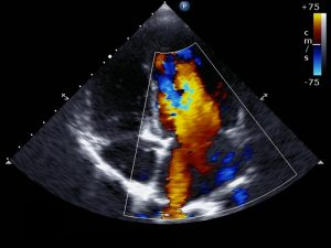 Can Echocardiogram can directly assess your heart valves