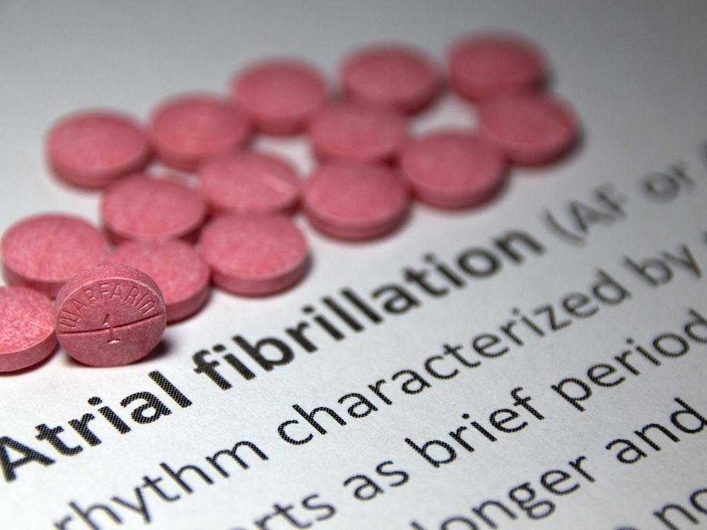 Atrial Fibrillation causes palpitations