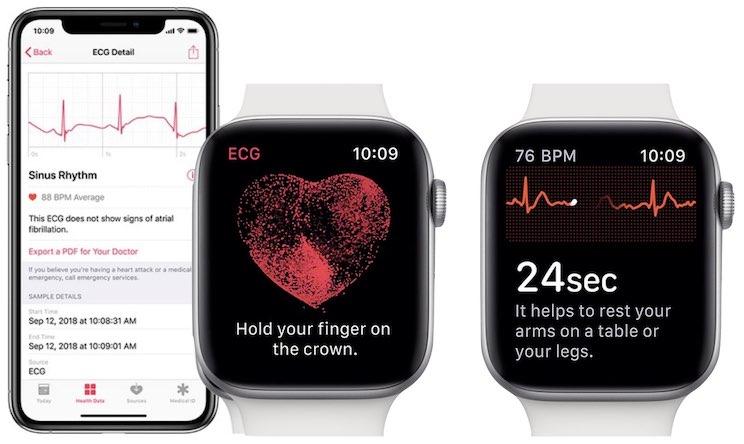 Apple Watch ECG monitoring