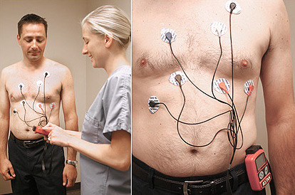 ECG monitoring for Palpitations and Arrhythmia