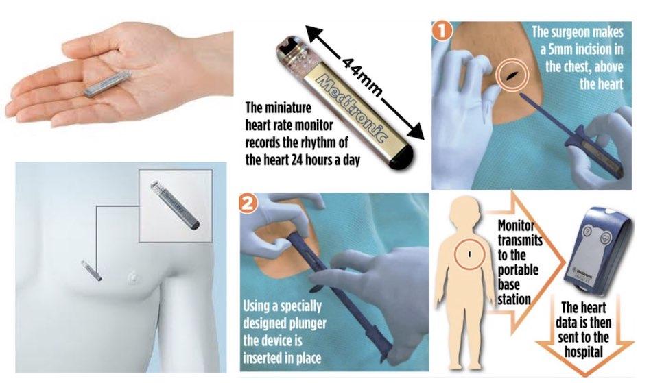 Implantable Loop Recorders