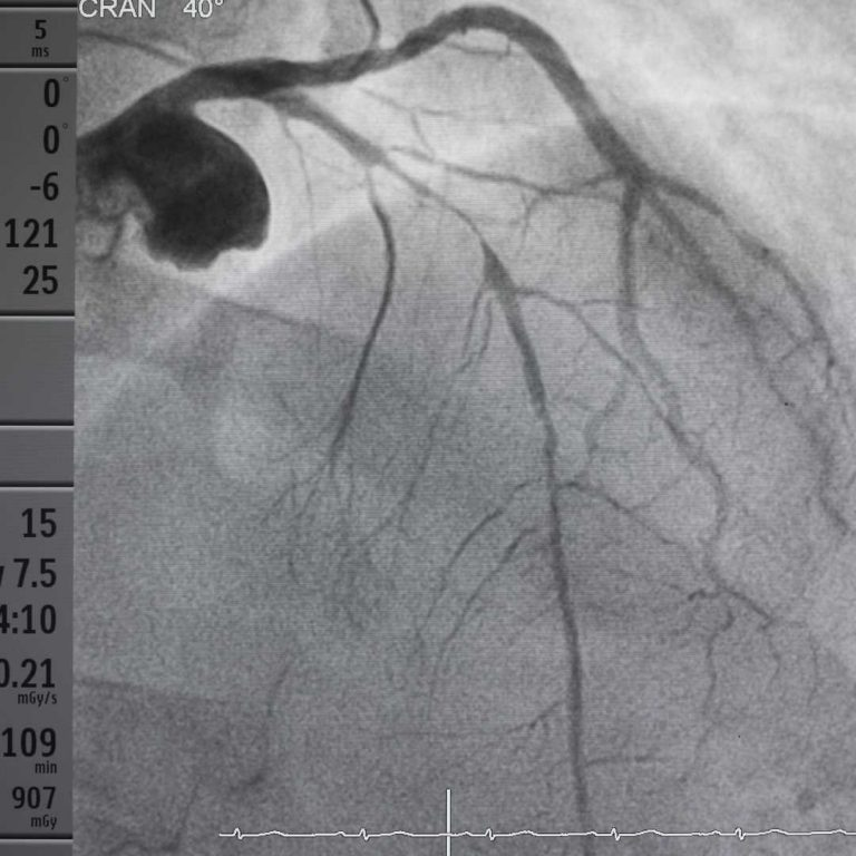 Left anterior descending (LAD) artery with severe obstruction