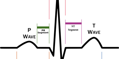 ECG-Schema-of-Waves.png